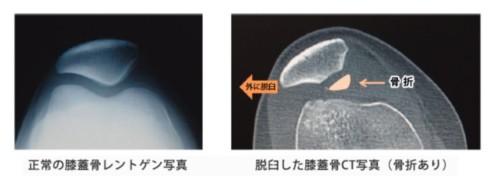 両側膝蓋亜脱臼症候群ってどんな病気?
